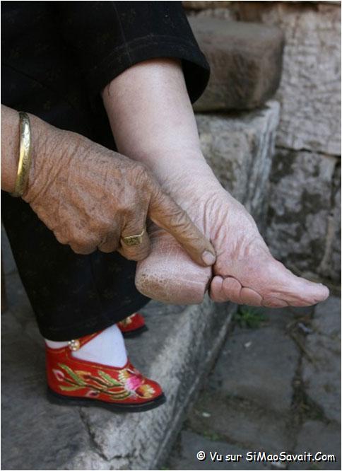 pieds mutilés en chine
